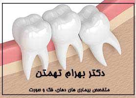 دکتر بهرام تهمتن - متخصص بیماری های دهان، فک و صورت