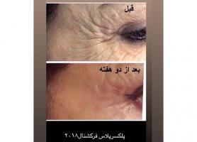 مرکز مراقبت پوست ، مودکتر حمید مهاجری نژاد