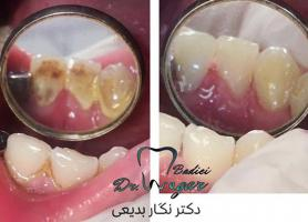 دکتر نگار بدیعی - دندانپزشک، كودكان - زيبایی