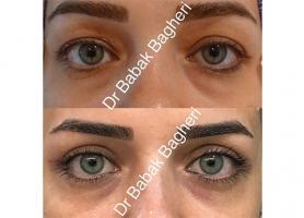 دکتر بابک باقری - فلوشیپ جراحی پلاستیک و ترمیمی چشم (اکولوپلاستی)