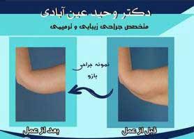 دکتر وحید عین آبادی - متخصص جراحی زیبایی