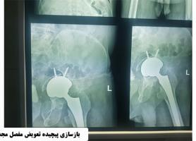 دکتر محمد علی قاسمی - فوق تخصص جراحی لگن و مفصل ران