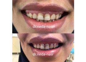 دکتر ندا نصر - دندانپزشک متخصص جراحی لثه و ایمپلنت
