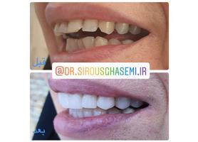 دکتر سیروس قاسمی - جراح دندانپزشک زیبایی