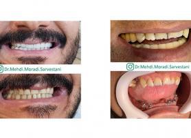 دکتر مهدی مرادی سروستانی - دندانپزشک زیبایی - ایمپلنت