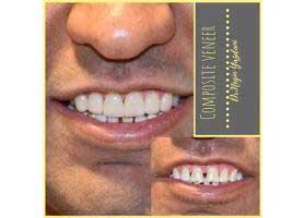دکتر نگین یزدانی - دندانپزشک ترمیمی و زیبایی