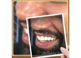 دکتر سعادت روایی - دندانپزشک زیبایی و ایمپلنت