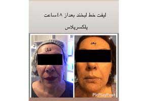 مرکز مراقبت پوست ، مو پرتو زندگی