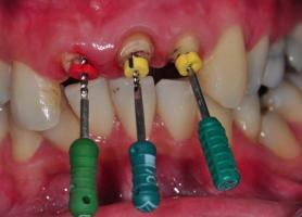 مراحل عوارض هزینه و زمان مناسب عصب کشی دندان