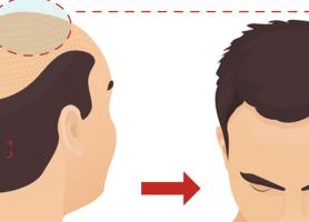 روش کاشت مو اف یو تی چیست؟