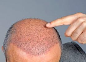 معرفی انواع بانک مو در کاشت مو
