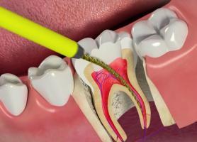 درمان ریشه دندان مراحل عصب کشی و سوالات متداول