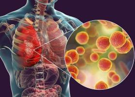 پیامدهای ناشی از بیماری برونشیت