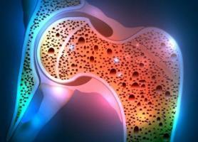 پوکی استخوان علائم عوامل خطر عوارض و پیشگیری