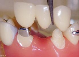 انواع بریج دندان مزایا معایب مواد سازنده و هزینه آن