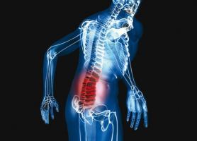 تومور ستون فقرات چیست؟