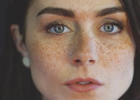 انواع عوامل خطرزا عوارض و درمان کک و مک پوست