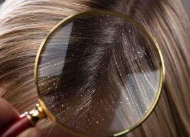 با این سه ماده طبیعی شوره سر را درمان کنید