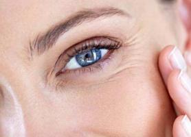 درمان خط زیر چشم چگونه است؟