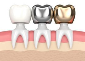 انواع تاج دندان کاربرد مراحل نصب معایب و مراقبت
