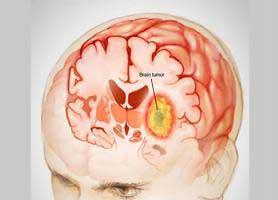 تومور مغزی ؛ علائم خاموش و نشانه های اولیه