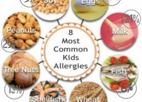 آلرژی غذایی چه علائمی دارد؟