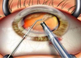 جراحی کاتاراکت چیست؟