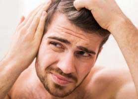 ریزش مو و طاسی در مردان