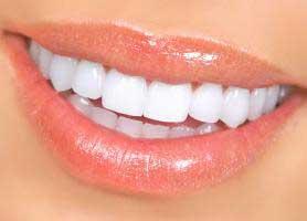 لمینت سرامیکی دندان یا لمینت کریستالی