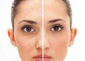 بستن منافذ باز پوست با چند روش