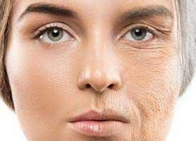 علائم پیری زودرس پوست چیست؟