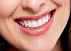لمینت کامپوزیتی دندان یا ونیر کامپوزیت