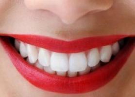 چگونه لبخند زیبایی داشته باشیم