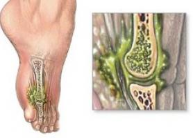 استخوان چرا دچار عفونت میشود