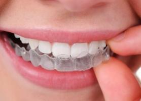 بلیچینگ پرعارضه ترین روش دندانپزشکی