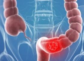 علائم و درمان سرطان روده بزرگ