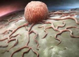 سرطان نوک سینه