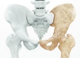 دانستنی های ضروری پوکی استخوان