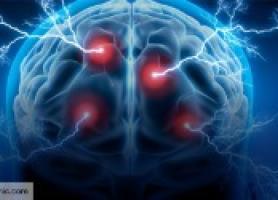 فواید تزریق بوتاکس برای بیماران سکته مغزی
