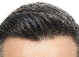 کاشت مو به روش ترکیبی چیست ؟