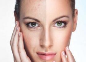 روش های انجام جوانسازی پوست