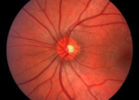 آنژیوگرافی شبکیه و علت انجام آن