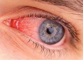 بیماری های حدقه چشم