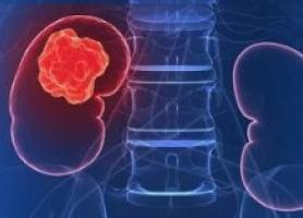 سرطان یا تومور کلیه چیست؟