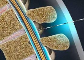 تزریق کورتون به کمر چیست ؟