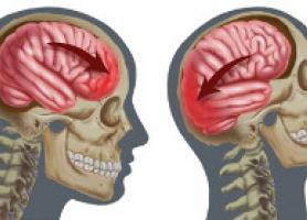 علائم خونریزی مغزی و درمان آن