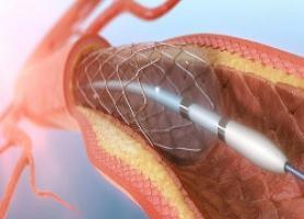آنژیوگرافی قلب به چه منظور انجام می گیرد؟