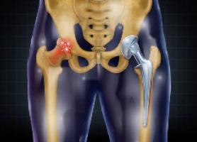 جراحی تعویض مفصل لگن و ران چیست؟