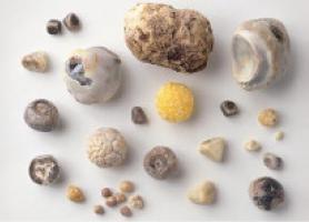 علت،علائم،خطرات و درمان سنگ کیسه صفرا