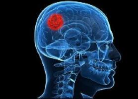 تومور قاعده جمجمه انواع ، علائم ، تشخیص و درمان